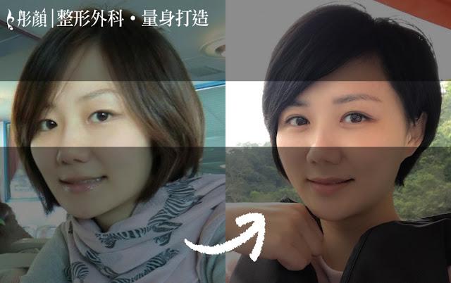 彤顏診所-割雙眼皮-開眼頭-雙眼皮手術推薦-雙眼皮推薦-中壢整形外科-桃園整形外科-眼神放大術