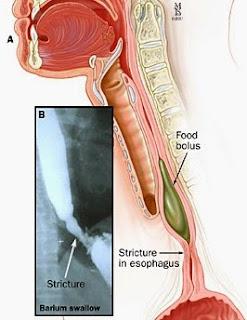 manfaat daun kenikir untuk Kanker esophageal