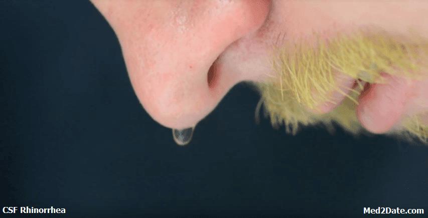 تسرب-السائل-النخاعي