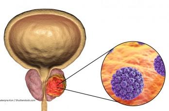 Tratamiento del alto puntaje de Gleason del cáncer de próstata