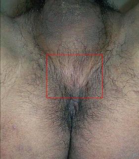 Apertar o períneo - Dica para evitar ejaculação precoce