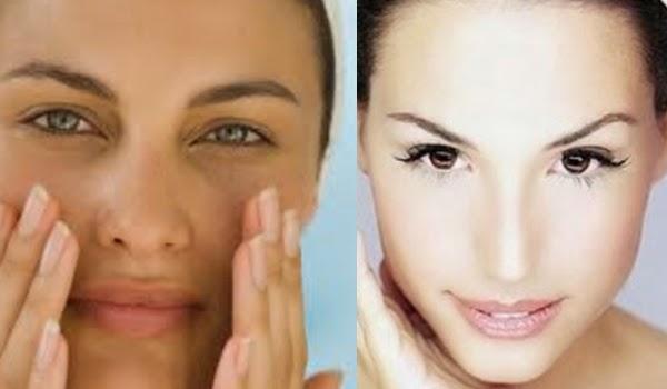 Tips Mengatasi Kulit Kering dan Kusam pada Wajah