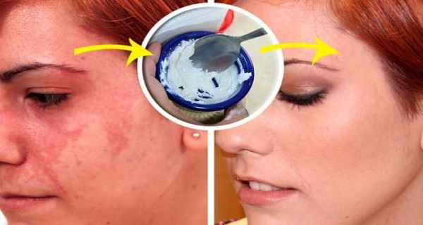 One Ingredient to Remove Them All: Here's How To Solve All Your Skin Problems Overnight!