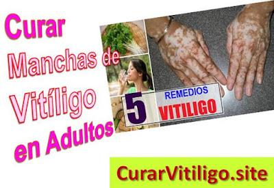 remedios-caseros-para-curar-el-vitiligo-en-adultos