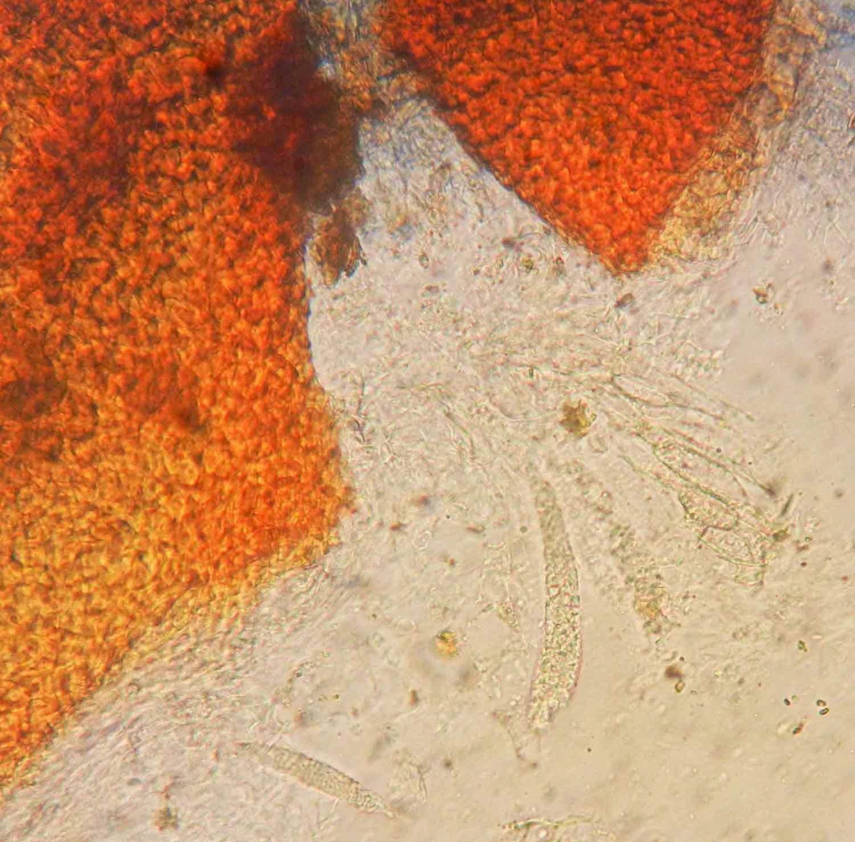 micro of orange nectria