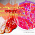 Bagaimana resveratrol dapat membantu mengurangkan risiko gout kembali menyerang