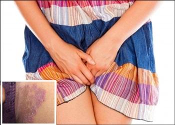 cara mengatasi gatal kulit sekitar kemaluan wanita hitam gatal sekali
