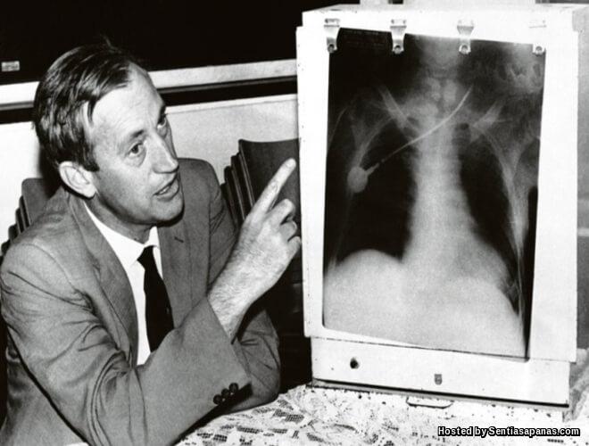 Dr Barnard Pakar Bedah Pemindahan Jantung Pertama Di Dunia
