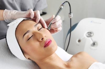 Công nghệ Laser hiện đại - cách chữa trị tàn nhang hiệu quả nhất