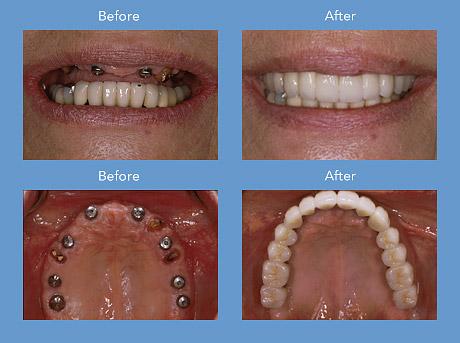 Cheap Implants Dental Implants Hair Implants Dental Implants Procedure