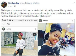 200L Uniport Student Narrates How Her Roommate Tear Her Face With Razor Because She Is Prettier Than Her