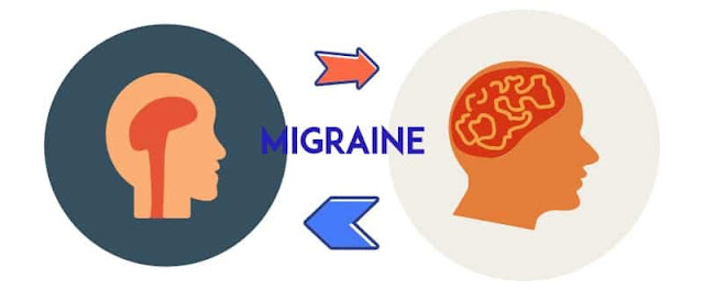 Top 5 Effective Homemade Migraine Remedies for Quick Relief
