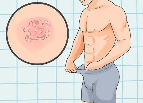 jual obat kutil kelamin pria di pangkalpinang