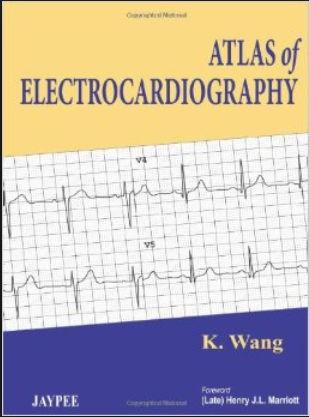Atlas of Electrocardiography (2013) [PDF]
