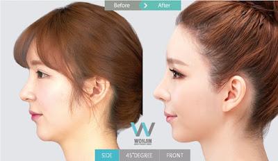 foto sebelum dan sesudah operasi plastik hidung non-invasif
