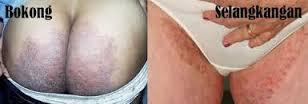 Obat Gatal Pada Selangkangan Dan Pantat Ampuh