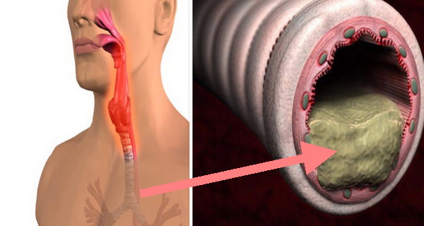 elimina mucusul cu acest preparat