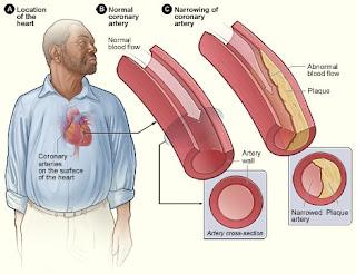 mengobati penyakit jantung