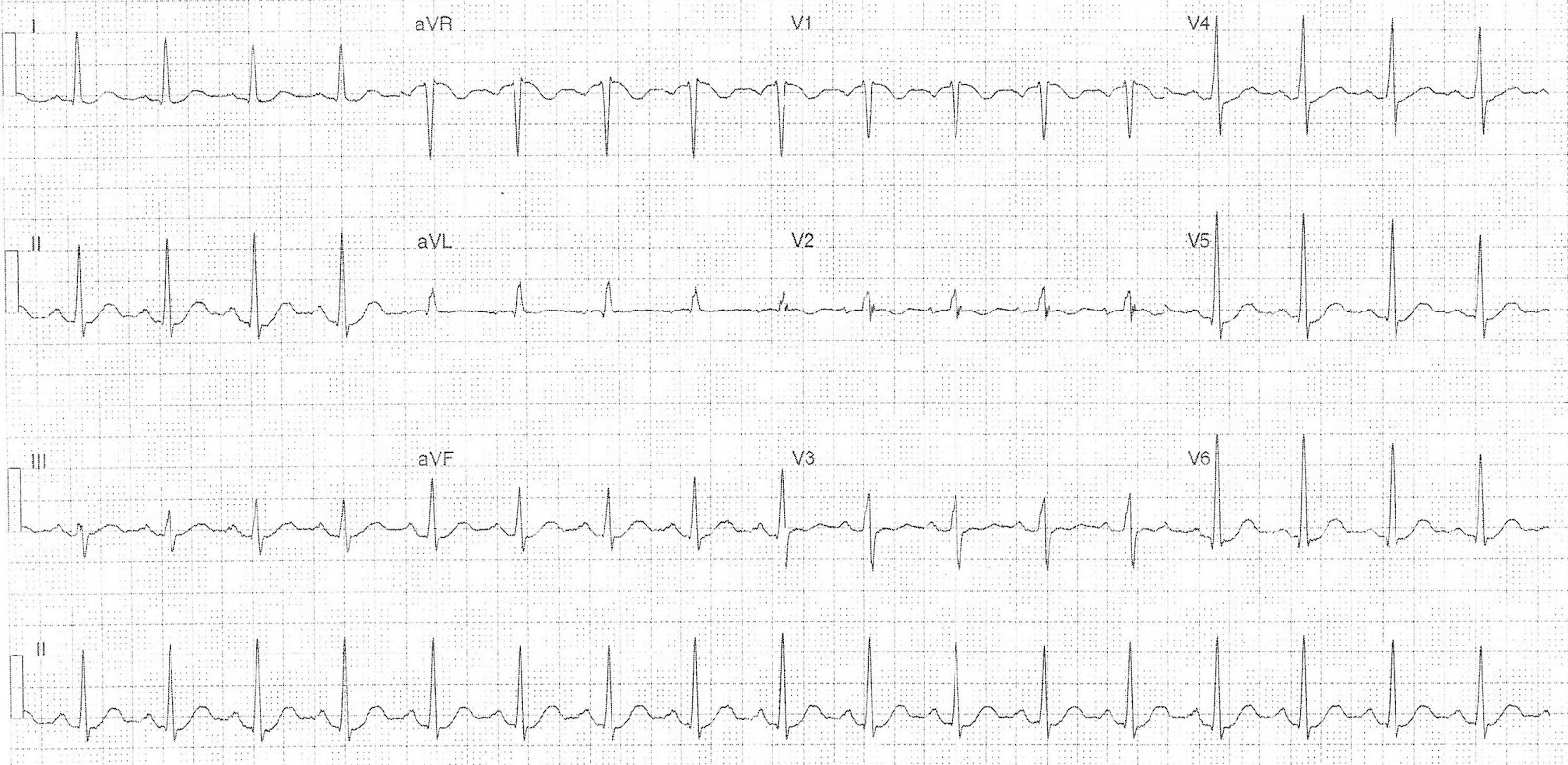 Pulmonary And Pericardial Ecg Quest