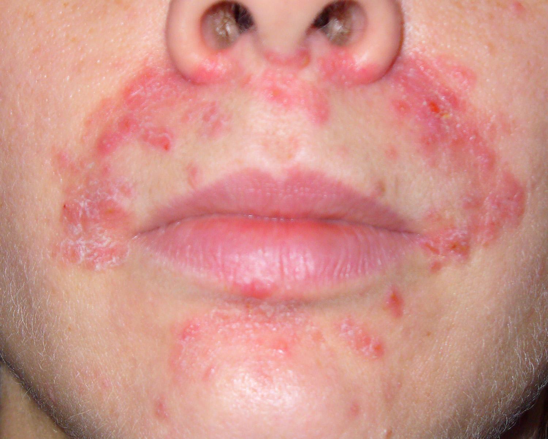 Como tratar la dermatitis perioral en ninos
