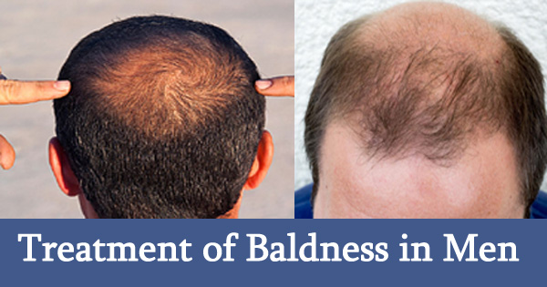Baldness Cure Men