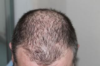 10 Cara Alami Menumbuhkan Rambut Botak
