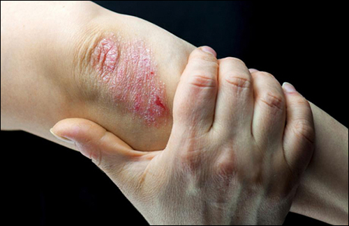 Treatment of Psoriasis in Ayurveda