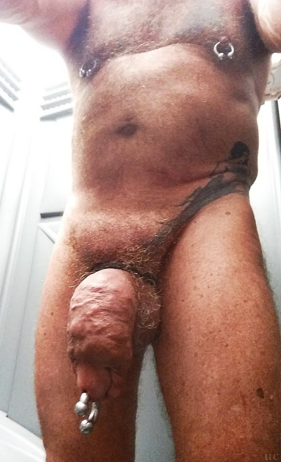 Silicon injections in penis