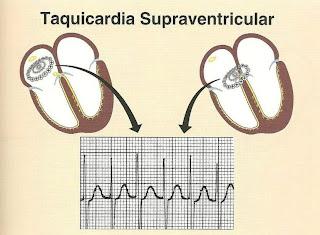 Taquicardia paroxistica supraventricular
