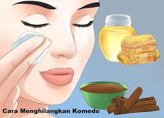 Cara Menghilangkan Komedo Di Wajah Dan Hidung Secara Alami