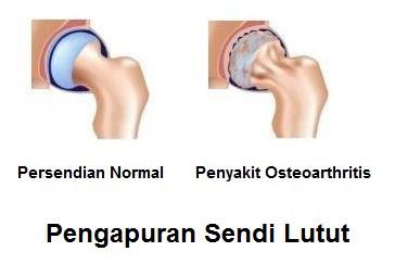 pengapuran sendi lutut osteoarthritis : penyebab, gejala dan pengobatan