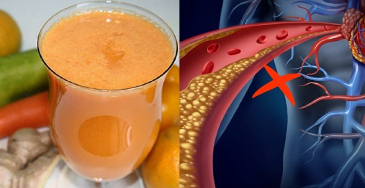 Clean Your Blood And Get Rid Of All The Pain And Inflammation With This Juice