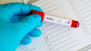 Campina Grande notifica primeiro caso suspeito de vírus H1N1 em 2016