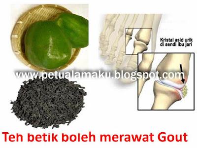 Petua sakit gout