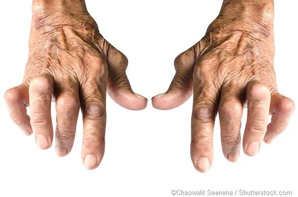 reumatoïde artritis en alcohol