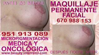tratamiento cicatriz cáncer de mamaria Reconstrucción de areola mamaria despues de una mastectomia