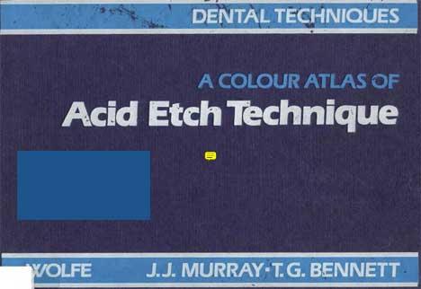 1 Download colour atlas of acid etch technique