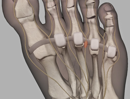 Should a Runner Have Morton's Neuroma Surgery?