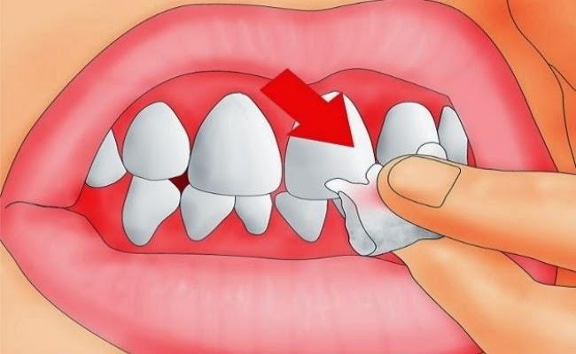 Les dents et les gencives douloureuses