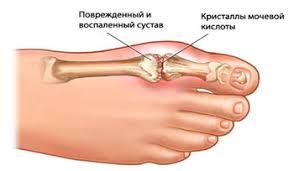 Остеохондроз шейного отдела позвоночника 2 стадии симптомы и лечение