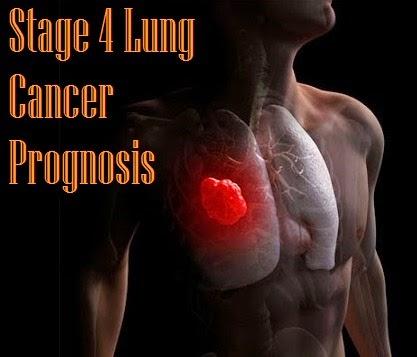 stage 4 lung cancer prognosis medimiss. Black Bedroom Furniture Sets. Home Design Ideas