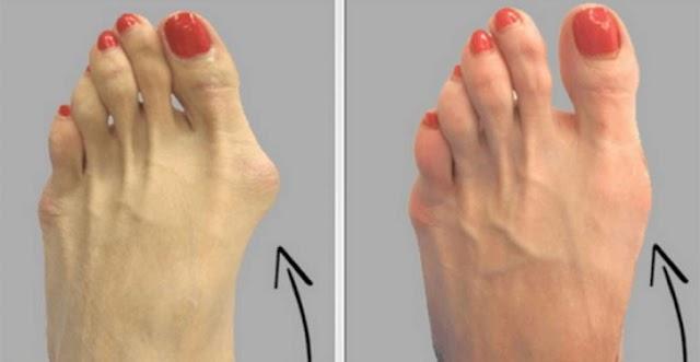 علاج طبيعي قديم للتخلص من بصيلة القدم...حصريا لأول مرة بموقع عربي !!!