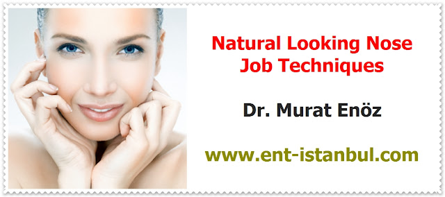 Natural looking rhinoplasty - Natural nose job - Natural rhinoplasty - Natural structure rhinoplasty - Natural nose rhinoplasty - Rhinoplasty in istanbul - Rhinoplasty in Turkey - Nose job in istanbul - Rhinoplasty istanbul - Rhinoplasty Turkey -  Nasal aesthetic surgery in İstanbul - Nose aesthetic surgery in Turkey - Nose job İstanbul - Nose job Turkey - Nose reshaping in İstanbul - Nose correction surgery in İstanbul
