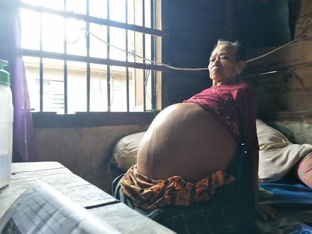 Mohon Bantuannya, Nenek Ponikem Alami Pembengkakan di Perut