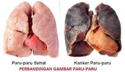 http://obatkankerparu-paru97.blogspot.com/
