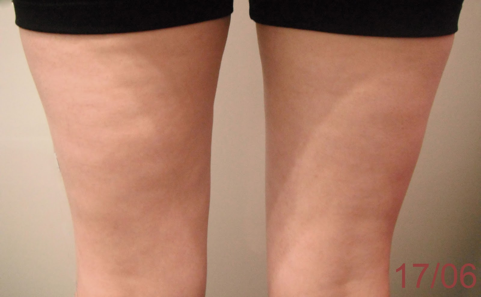 La BodyCup cellulite ventourse minceur  résultats