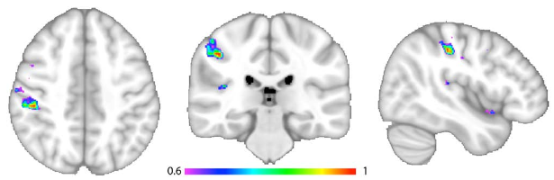 図:ラテロパルジョンが起きる脳の位置