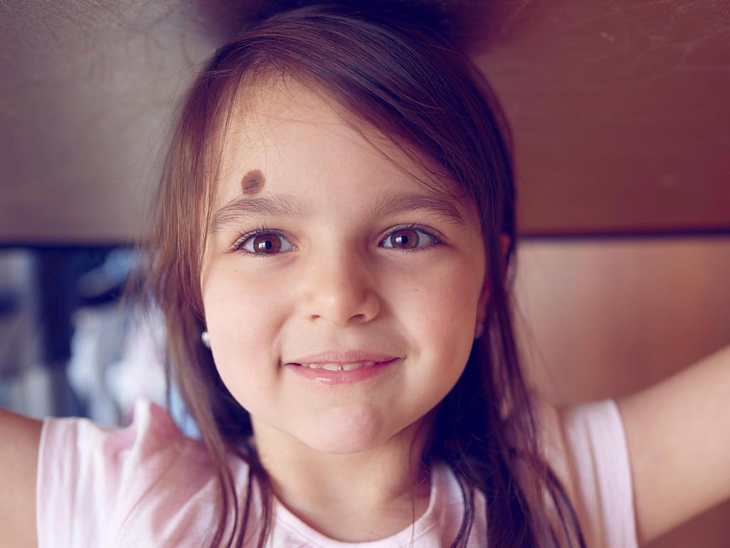 Why do birthmarks appear