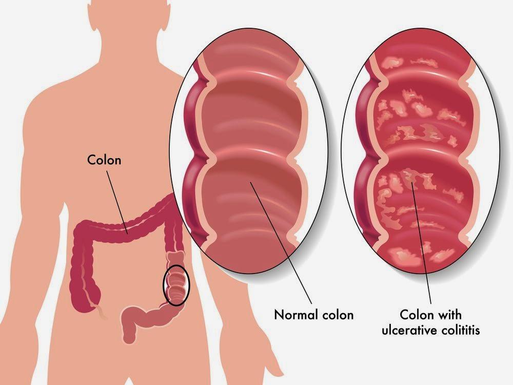 Liver Cancer Prognosis Prognosis Of Stage 4 Colon Cancer