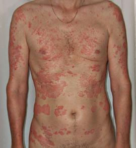 El tratamiento de la psoriasis con elenoy malyshevoy